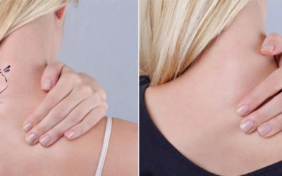 Two images showing before and after combination therapy tattoo removal.