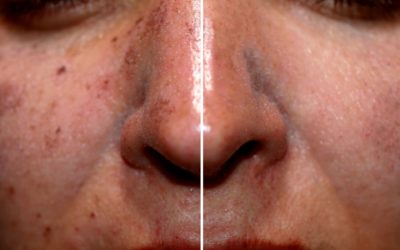 sun damaged skin before and after laser treatment