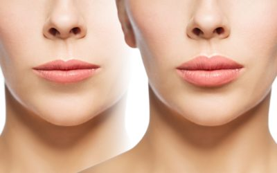 Before and after pictures of a woman who had laser lip treatment.