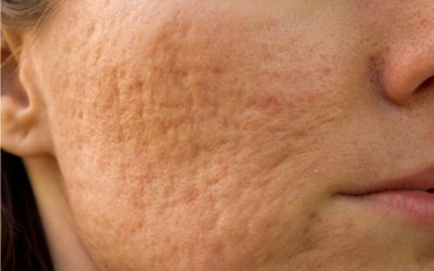 Patient with acne scars.