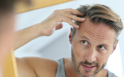 Laser Treatment for Hair Loss and Hair Loss Prevention