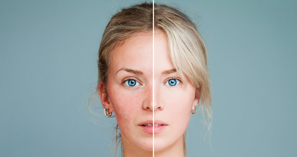 How To Effectively Treat Rosacea Sufferers Using Laser Surgery